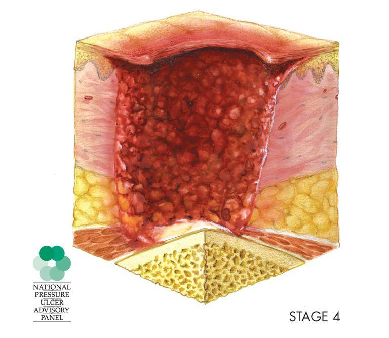 bed sore, pressure sore, pressure ulcer stage 4,