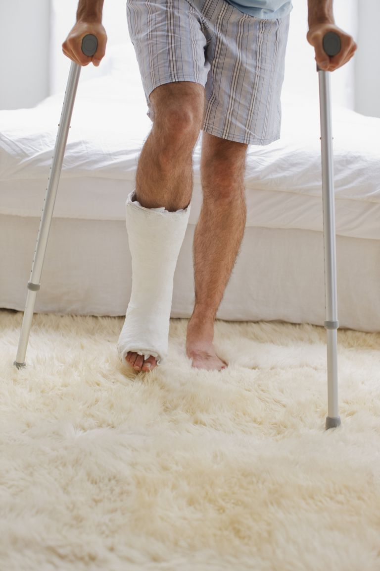 man on crutches with cast on leg