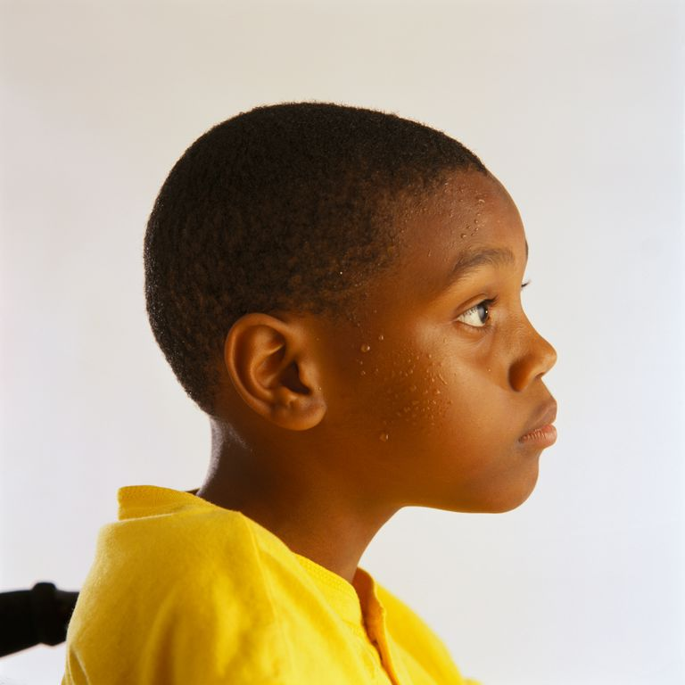 10-Year-Old Boy Perspiring