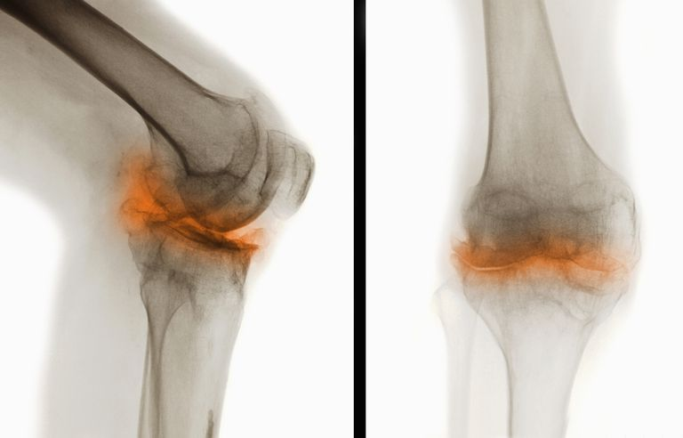 Two X-ray radiograph views of male 44 year old knee with severe degenerative osteoarthritic changes
