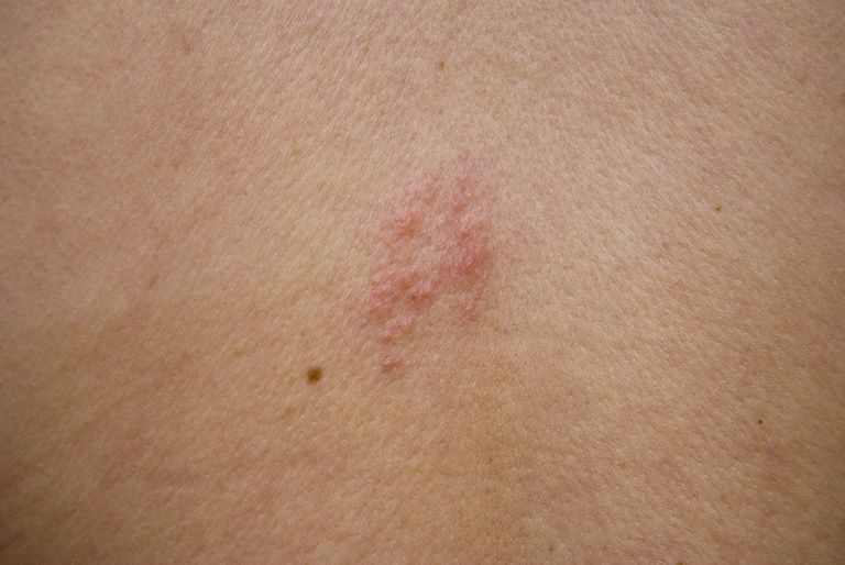How Shingles May Cause A Headache