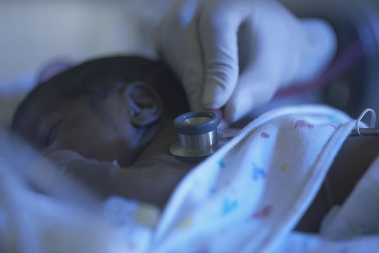 African American premature baby being examined