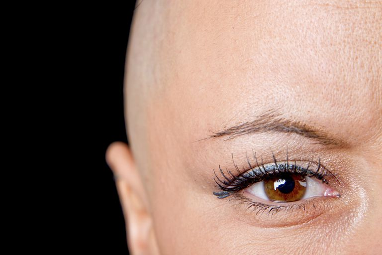 cancer survivor without hair