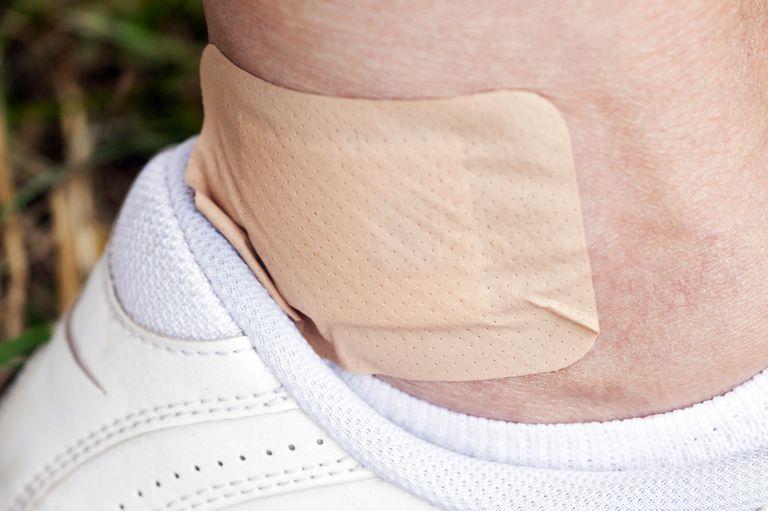 Bandaged Blister