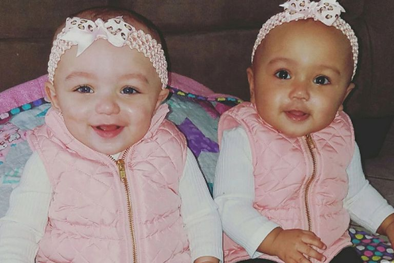 Images of twins - one with light skin, one with dark