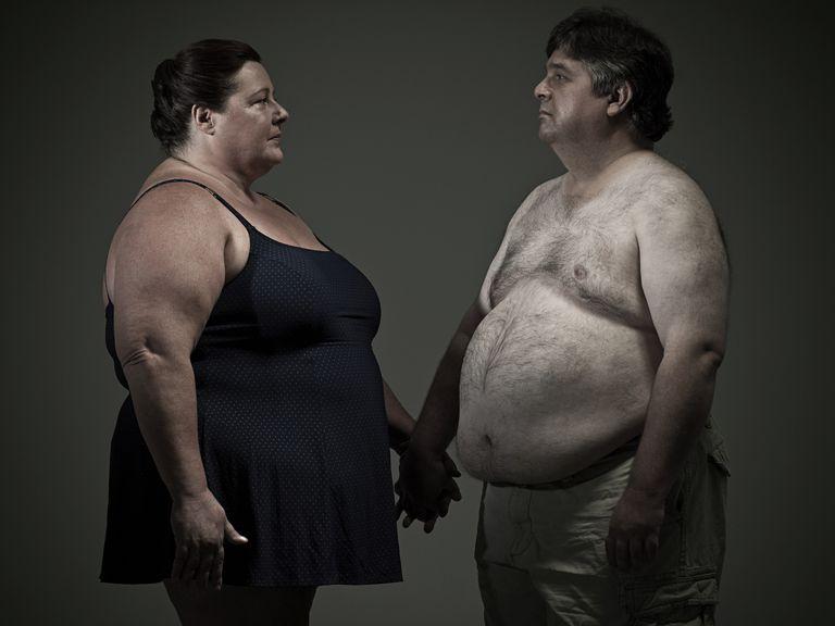 Obesity may increase back strain or lordosis.