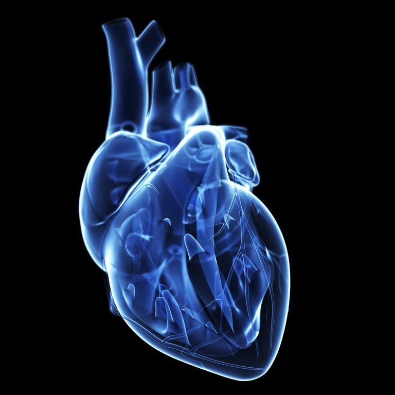 Miocardiopatia hipertrófica