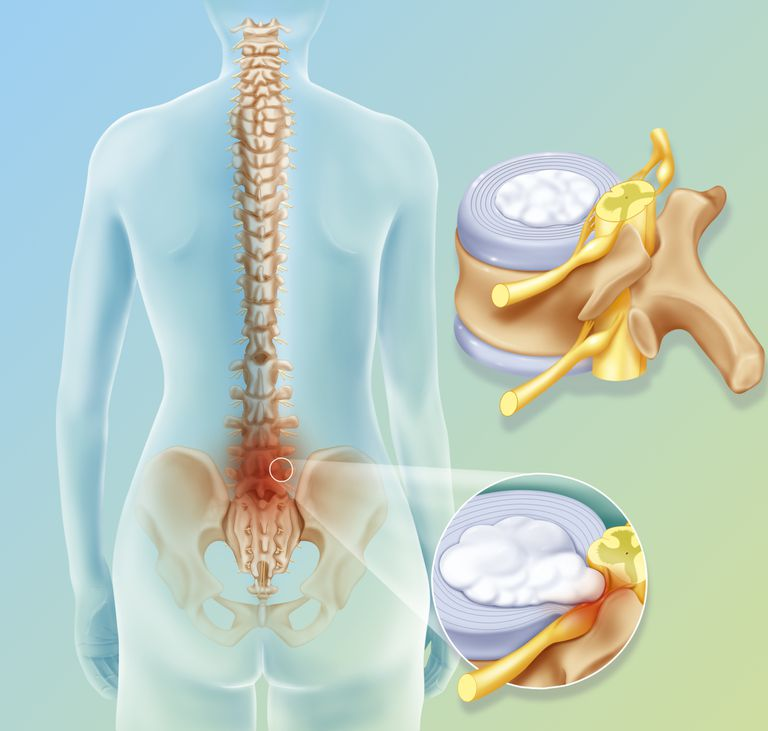 Illustration of a spinal disc herniation between L4/L5 (4th and 5th lumbar vertebrae) and L5/S1 (5th lumbar and 1st sacrum)