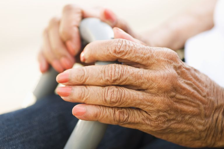An elderly woman with arthritic hands.