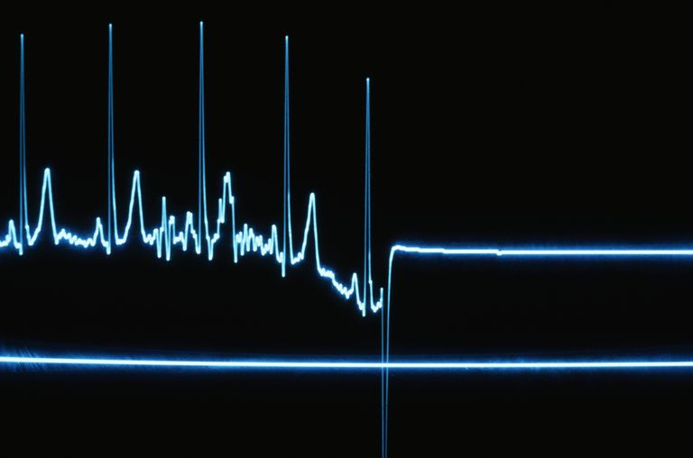 Flatline on a Heart Monitor
