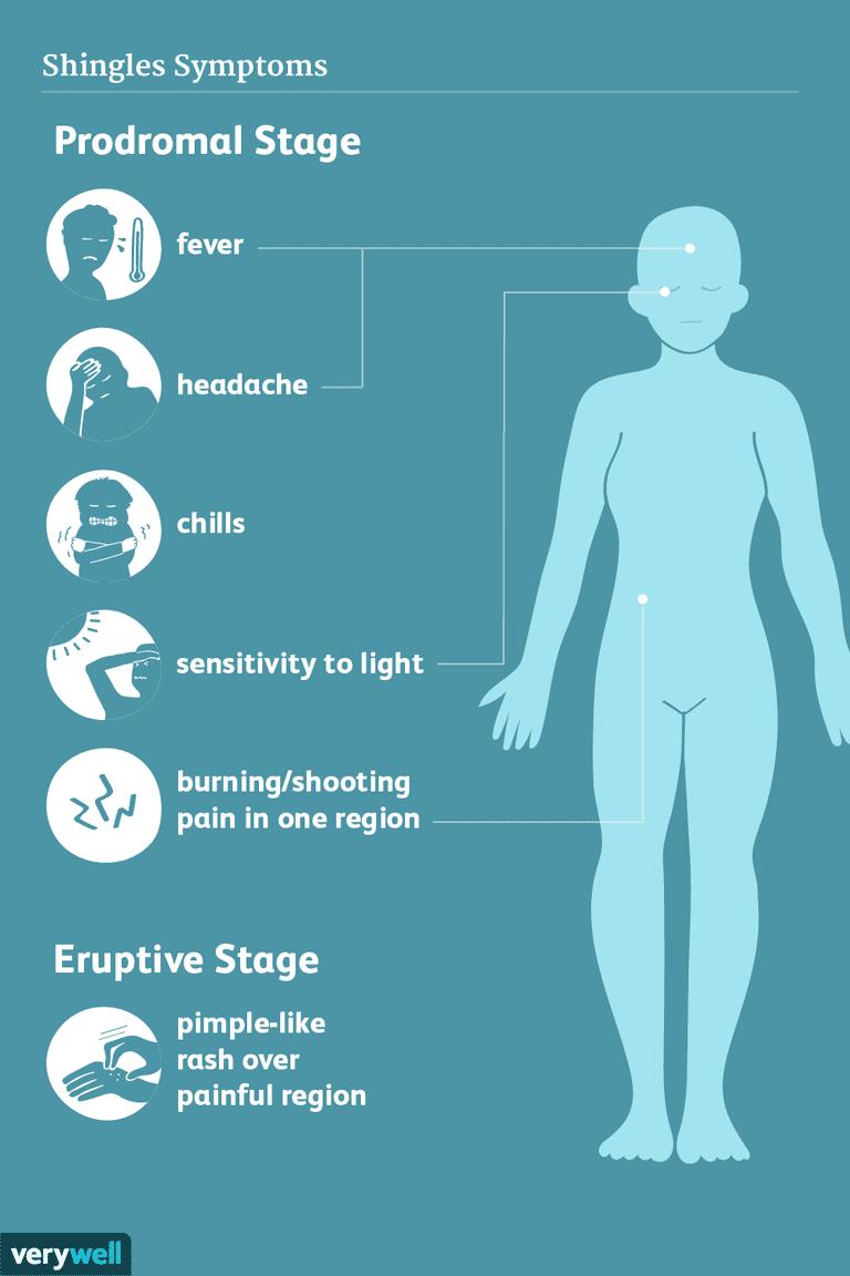shingles symptoms