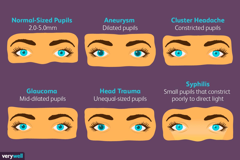 Pupil Size Medical Problems