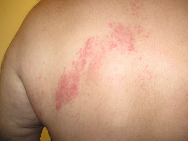 Rash consistent with shingles