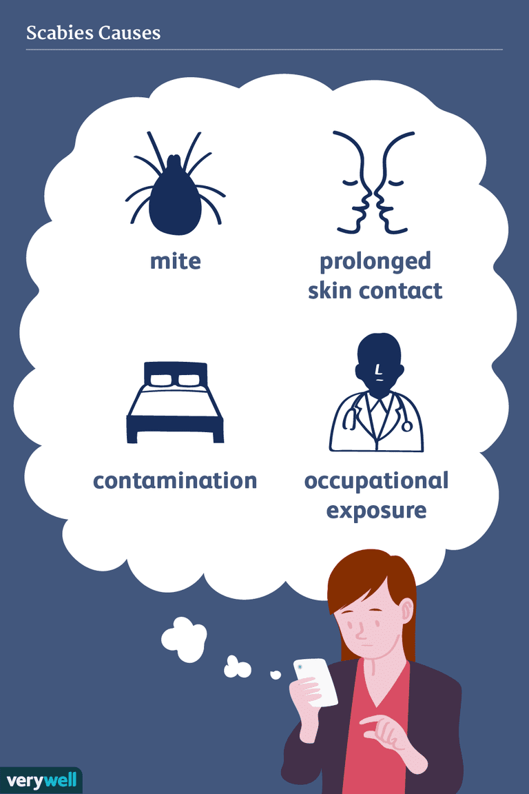 scabies causes