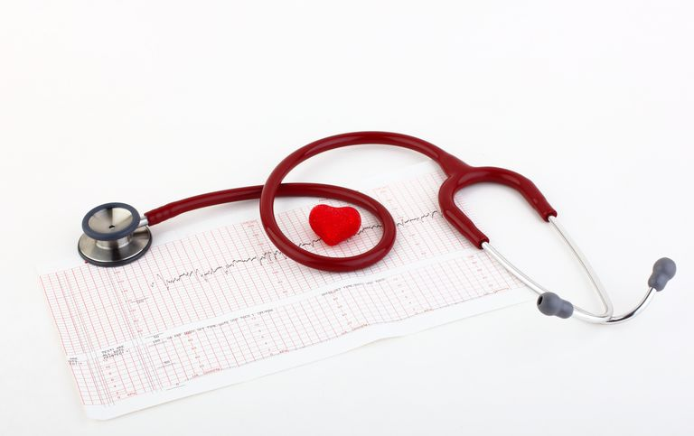 stethoscope on electrocardiogram chart