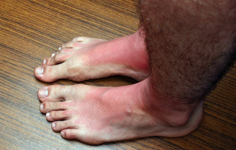Man's red and irritated feet