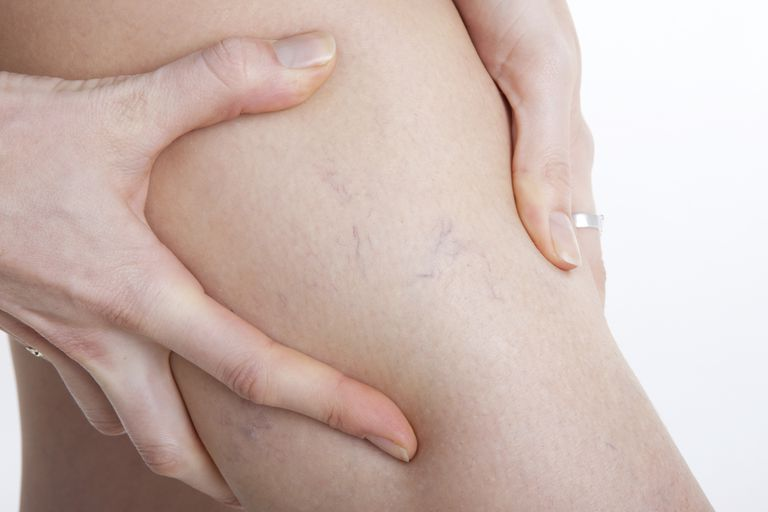 varices o venas varicosas, sintomas, causas y tratamiento