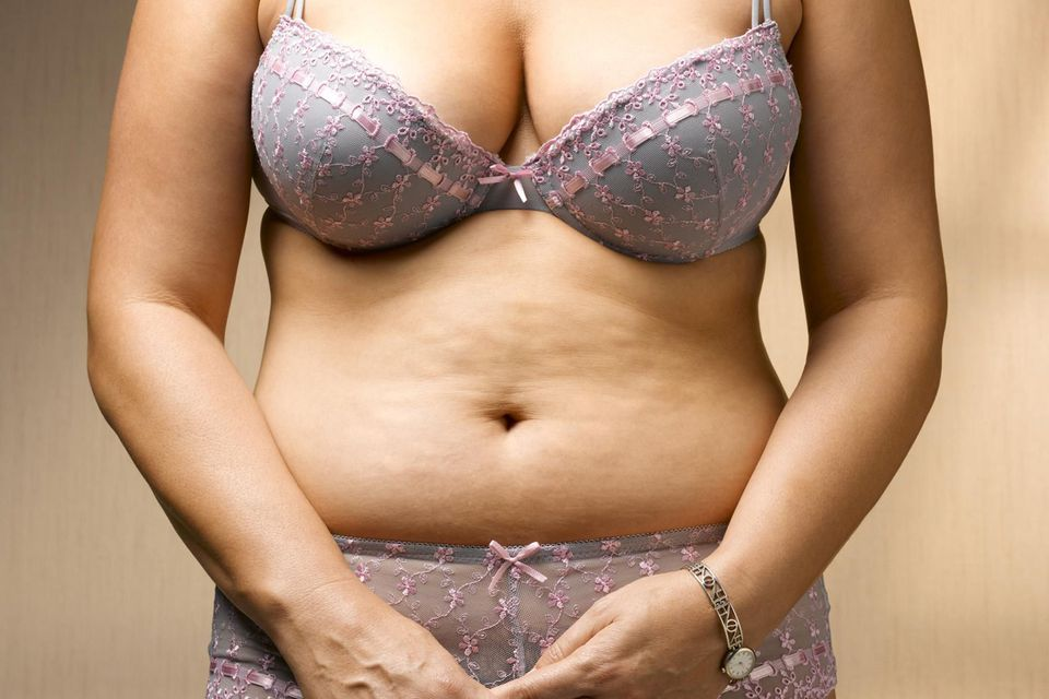 Stomach with cellulite