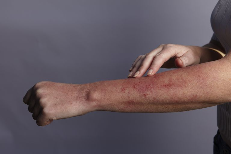 Is your rash due to gluten?
