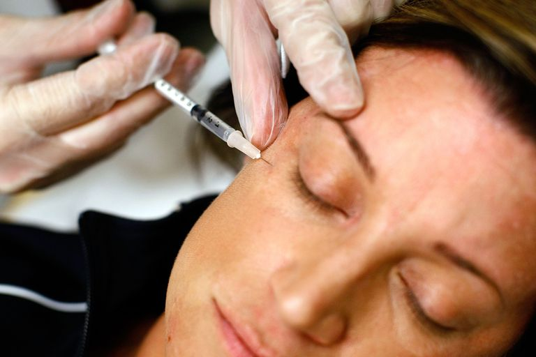 woman getting Botox injection