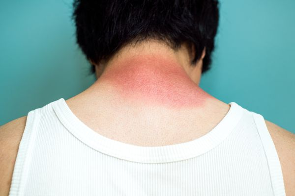 Man with skin irritation