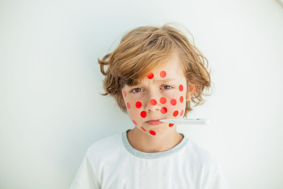 Blonde boy with red polka dots in his face and a thermometer.