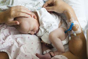 Cesarean Section (C-Section) Births