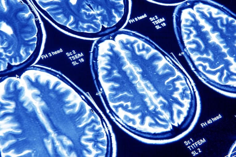 Brain scan images captured via MRI.