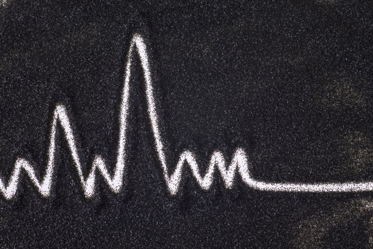 EKG drawing