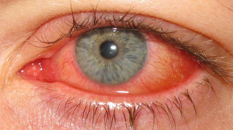 Silmätulehdus Adenovirus