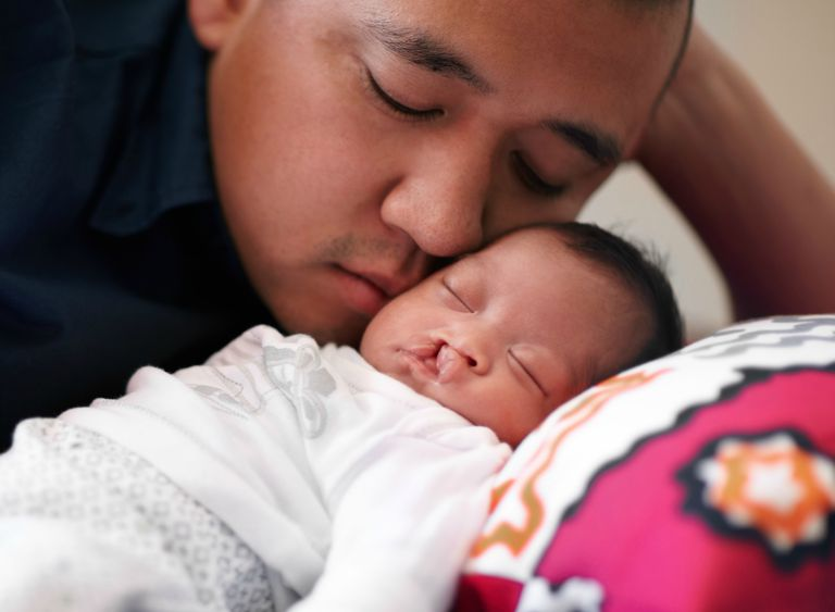 father and daughter with cleft lip