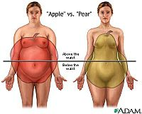 Different Fat Storage Shapes - Apple and Pear