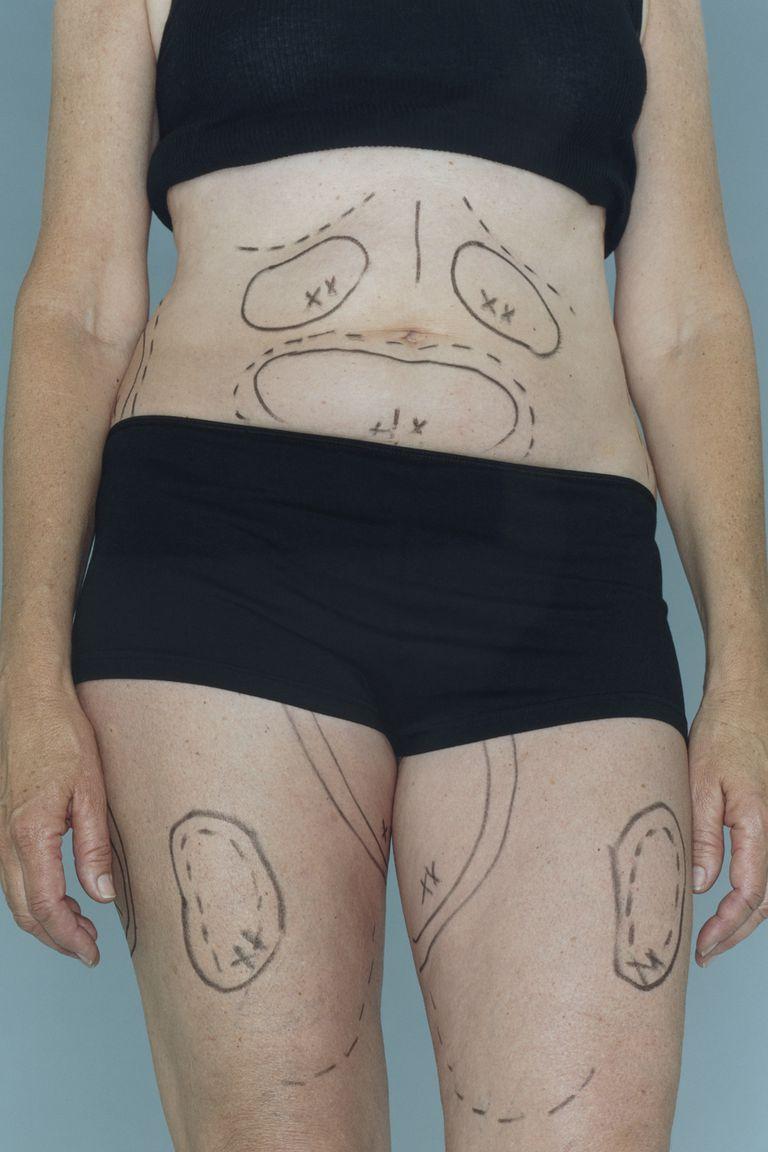Plastic surgery markings on a women's body.