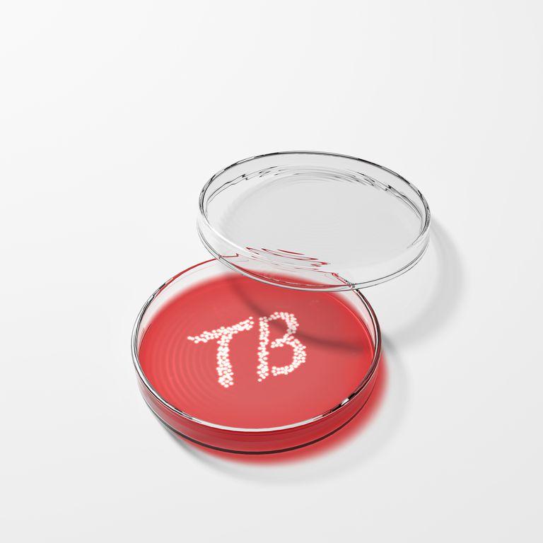Tuberculosis bacteria in a petri dish