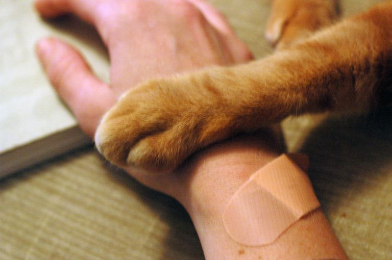 A bandaged human hand and a cat's paw.