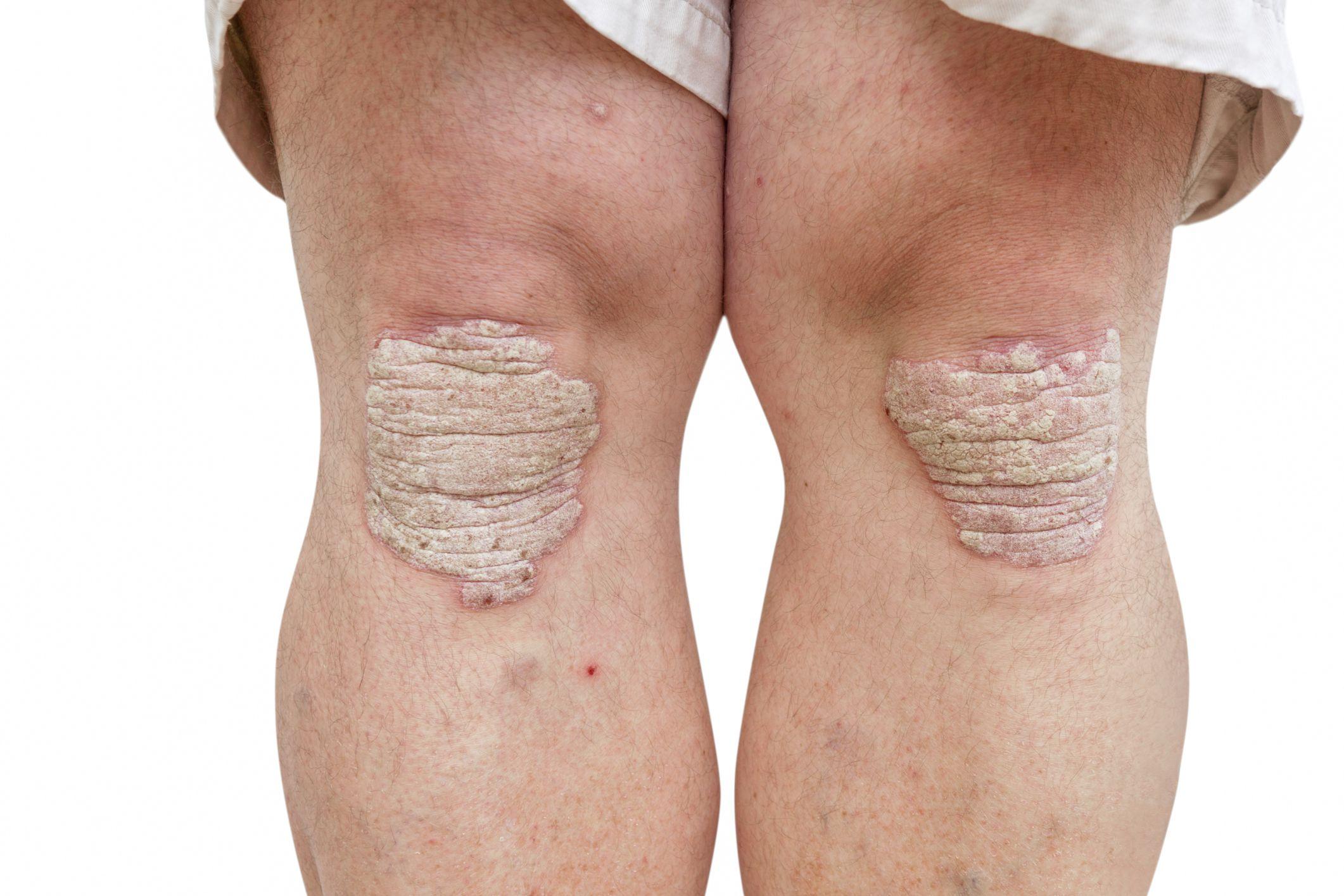 Psoriatic Arthritis - Recognizing the Signs and Symptoms
