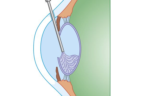 Cross section biomedical illustration of eye cataract surgery sucking softened tissue out using ultrasound probe inserted into lens via incision in cornea