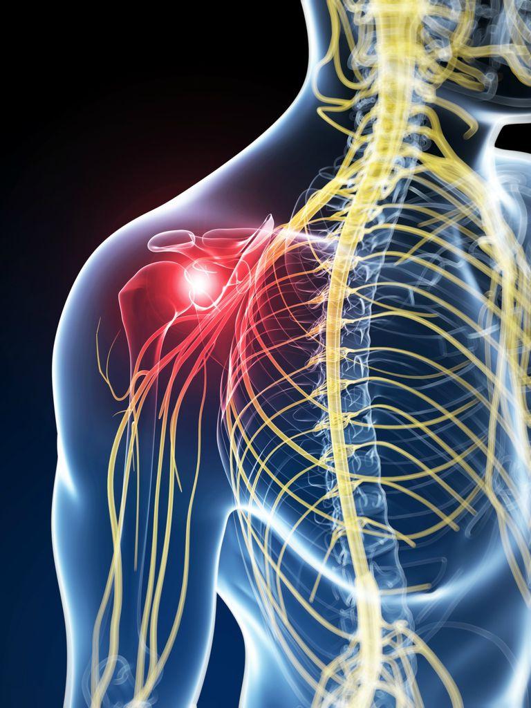 Human nerve pain, artwork