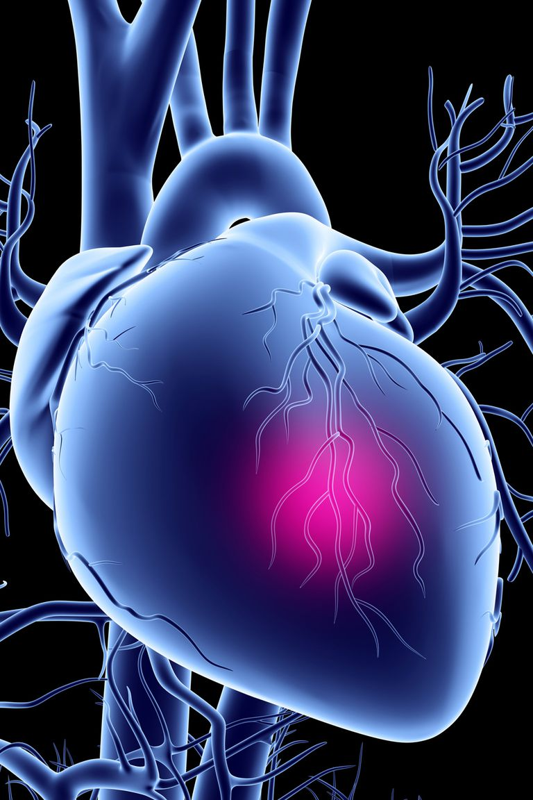 A graphic illustrating heart disease.
