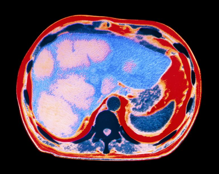 Coloured CT scan showing cancer of the liver