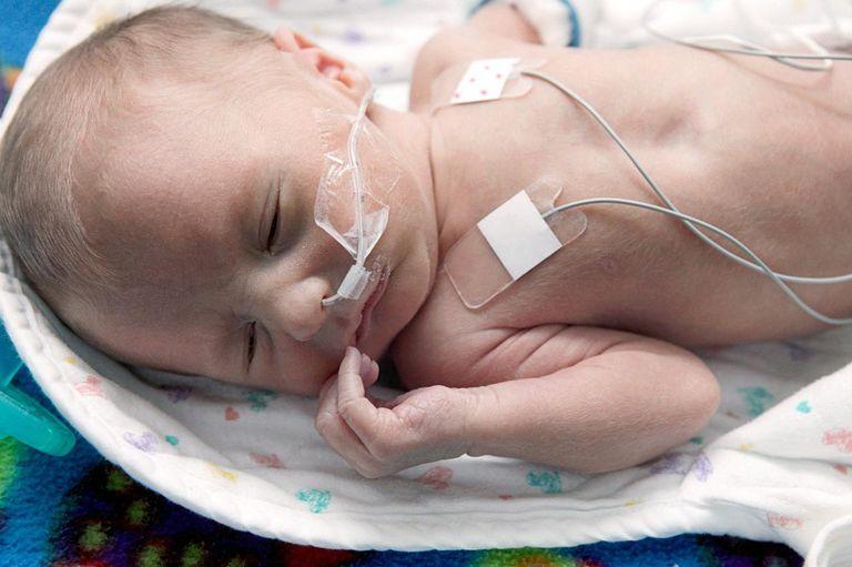 Newborn baby in incubator