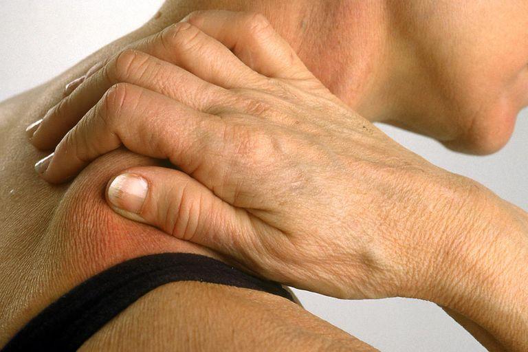 Anti-inflammatories for injuries