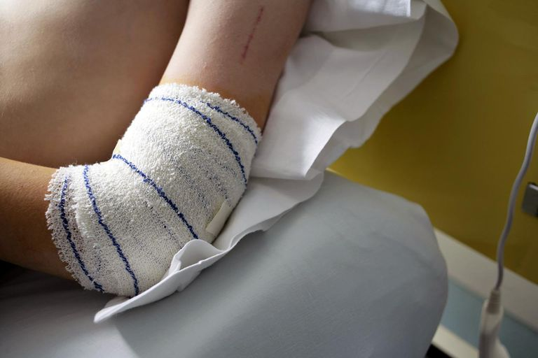 Tensor bandage around elbow after operation