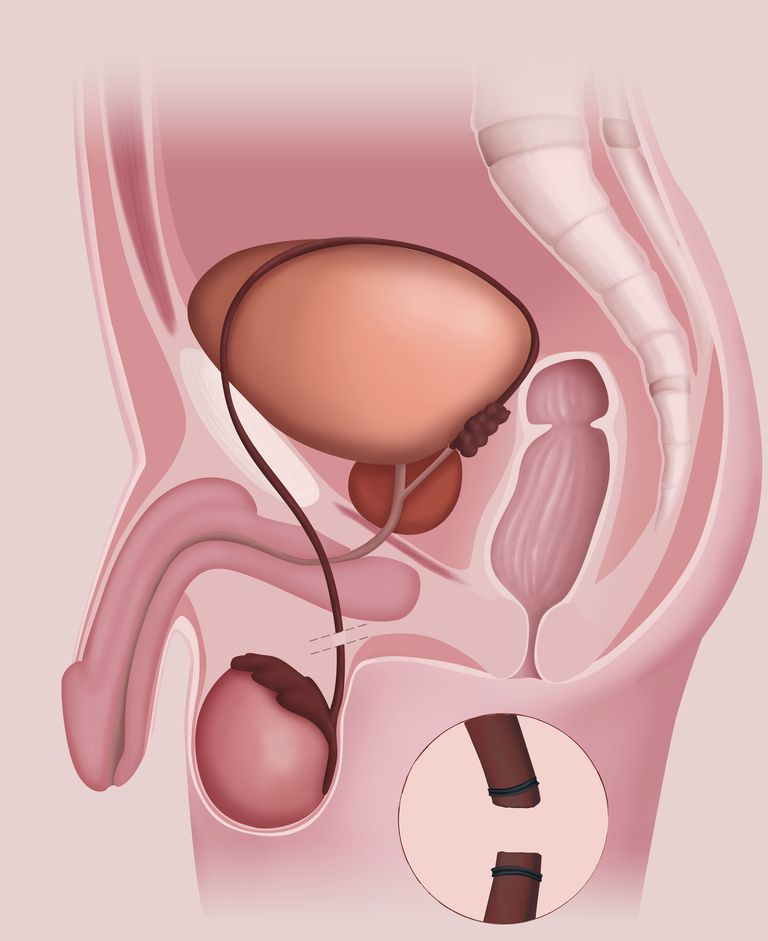 Vasectomy, illustration