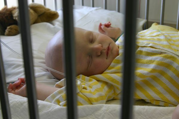 Cancer Kids; baby sleeping during chemotherapy