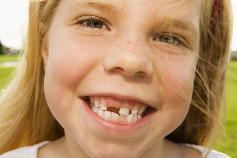 A child who has lost her first baby tooth.