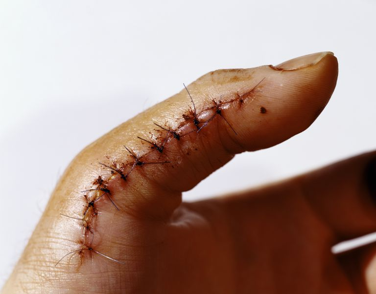 Man with ten stitches on thumb, close-up