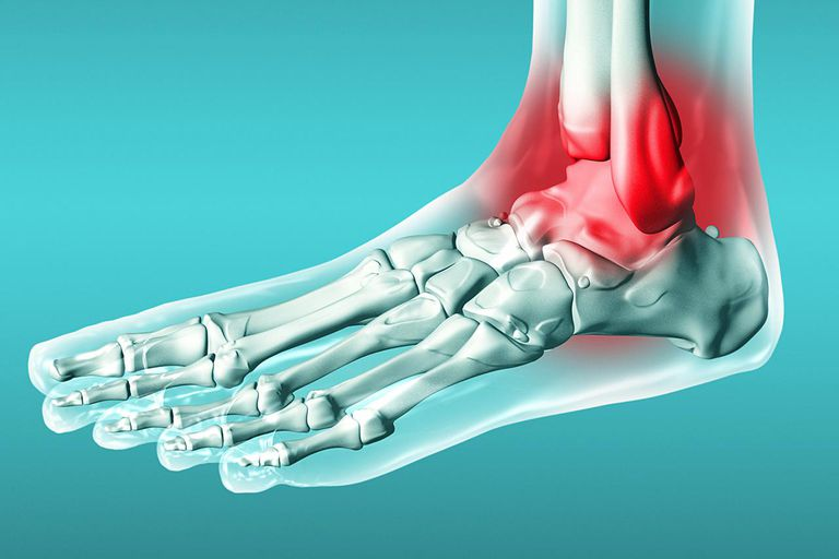 Foot Joint, Inflamation