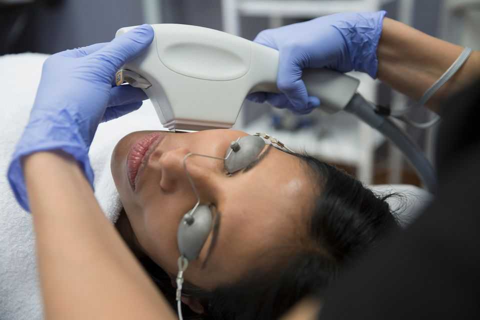 IPL photofacial reviews: session 2.