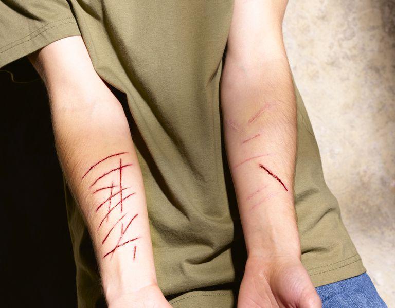 Cutting and Self-Injury